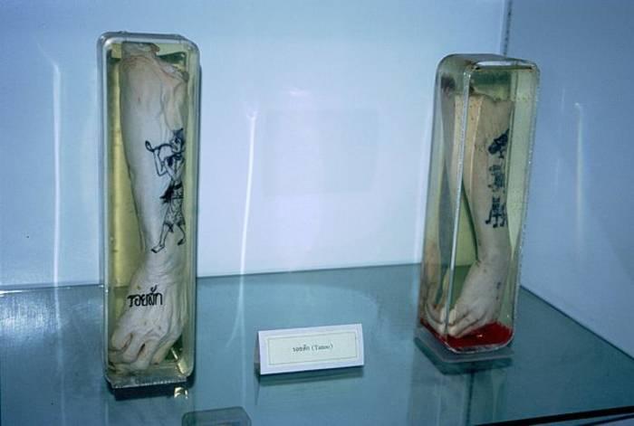 Музей Черепов и Скелетов/Мировые музеи анатомии: Австралия