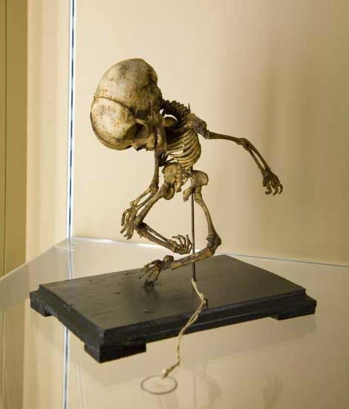 Музей Черепов и Скелетов/Мировые музеи анатомии: Австрия