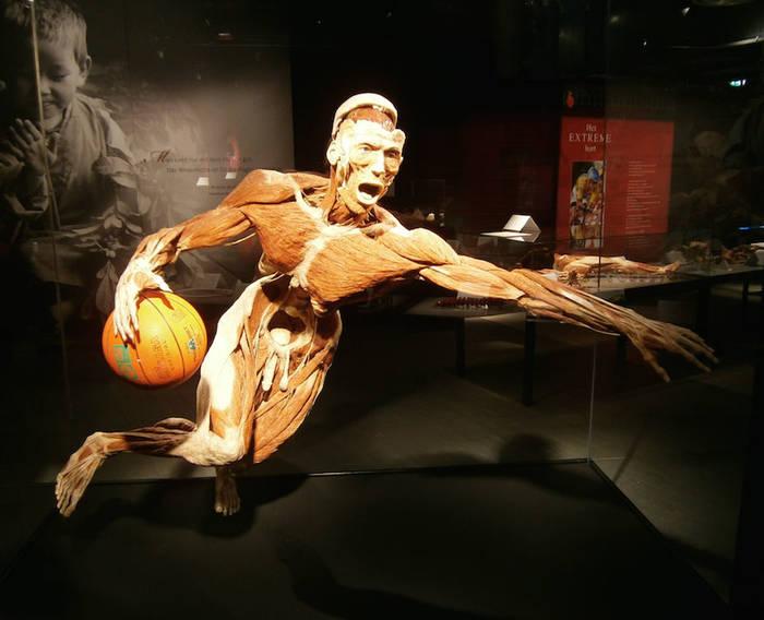 Музей Черепов и Скелетов/Мировые музеи анатомии: Германия
